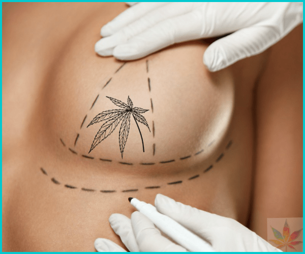 Breast Implants and Cannabis